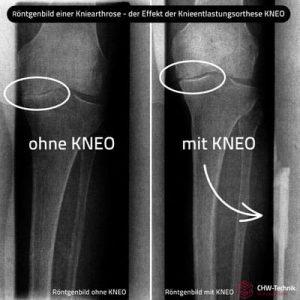 Die KNEO Knieorthese: Wem sie hilft und welche Unterschiede es gibt